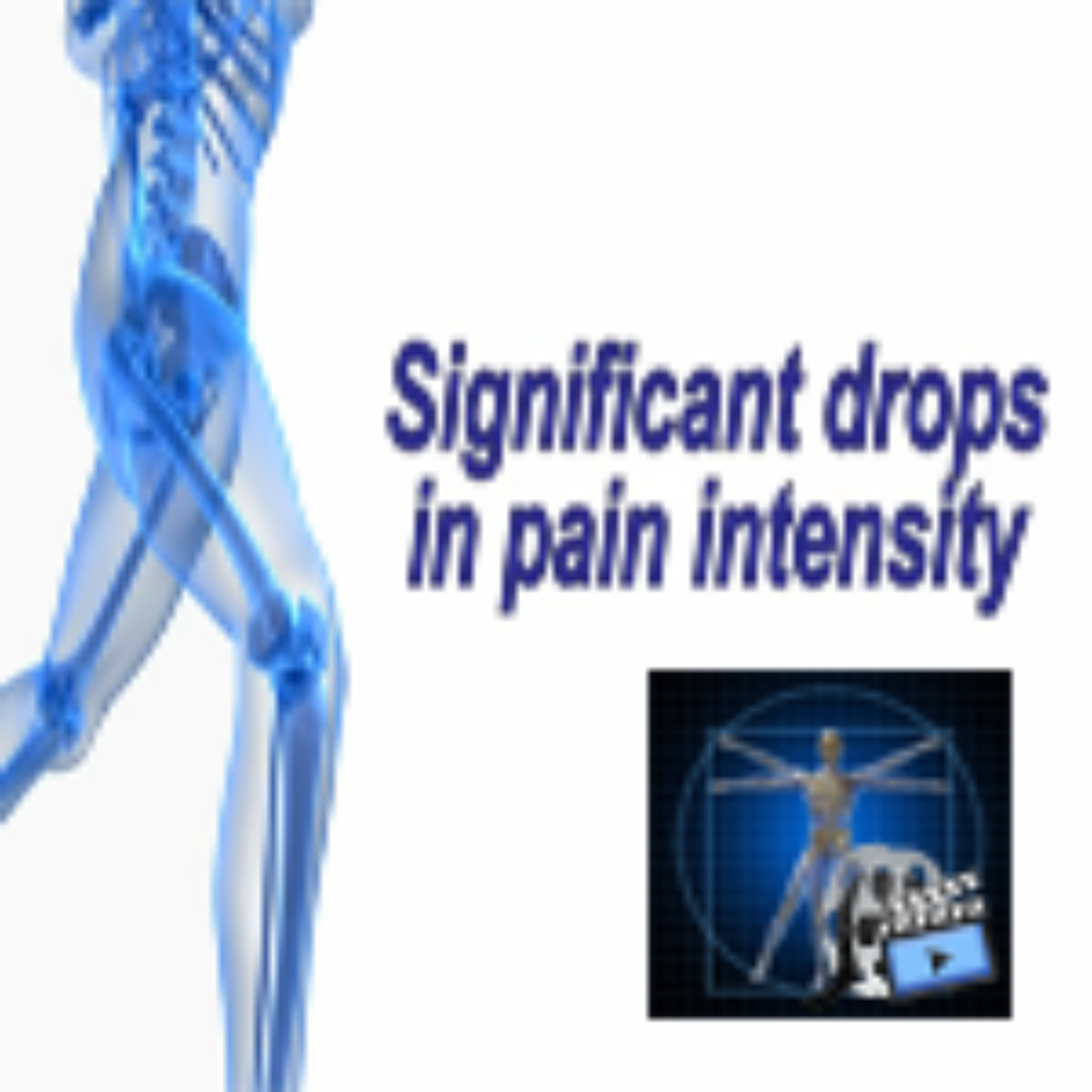 Relieving Knee Pain without Surgery