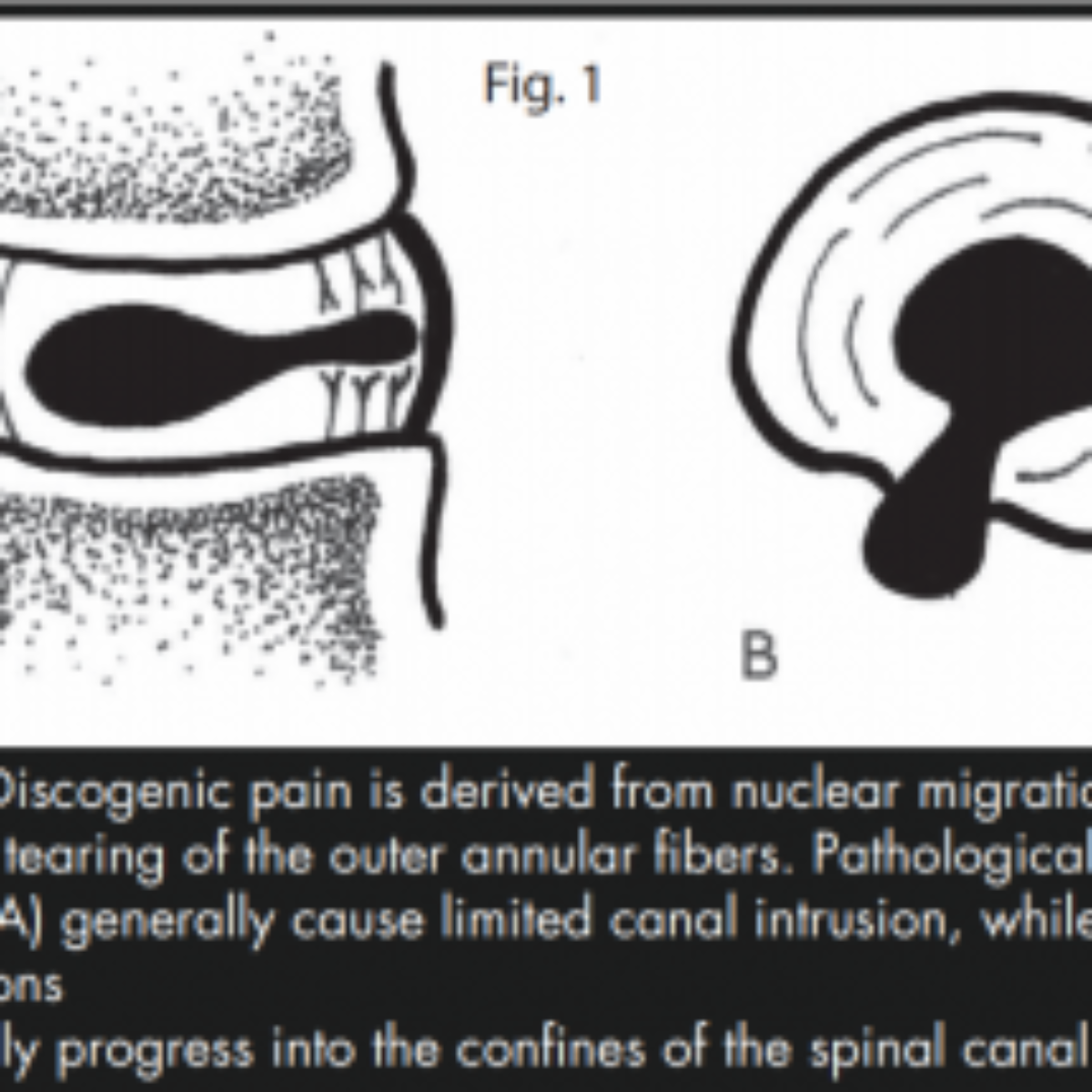 TREATMENT OF AN L5/S1 EXTRUDED DISC HERNIATION: A CASE REPORT