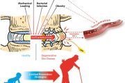 Degenerative Disc Disease & How Stiffness (Not Pain) in your Spine Leads To Mechanotransductive Diseases!